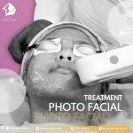Treatment Photo Facial