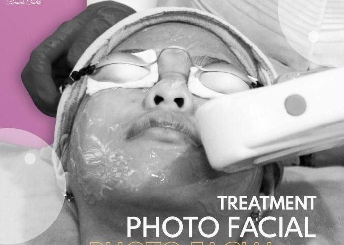 Treatment Photo Facial Di Klinik Rumah Cantik