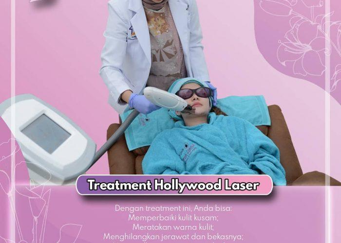 Hollywood Laser, Intip Keunggulannya!